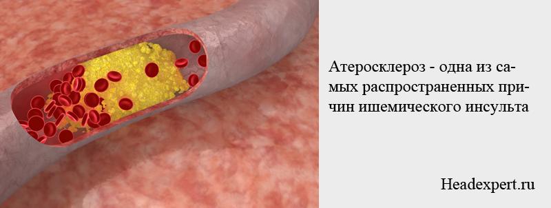Атеросклероз - самая распространенная причина ишемического инсульта