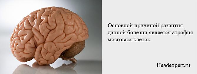 Атрофия клеток головного мозга - главная причина болезни Альцгеймера