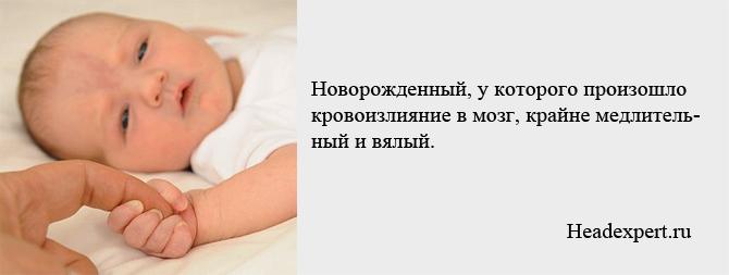 Новорожденный с кровоизлиянием в мозг крайне вялый и медлительный