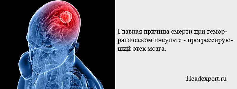 Главная причина смерти при геморрагическом инсульте - обширный отек мозга