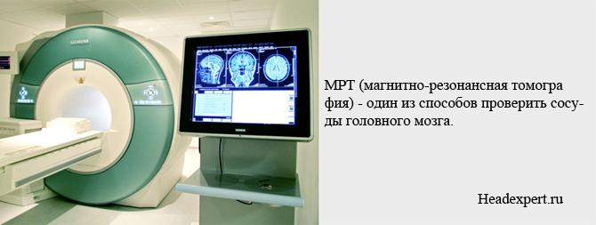 МРТ - один из способов диагностики сосудов головного мозга