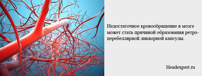 Нарушение мозгового кровообращения может привести к образованию кисты
