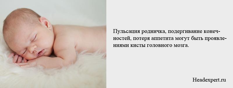 Подергивание конечностей и пульсация родничка могут быть проявлениями кисты