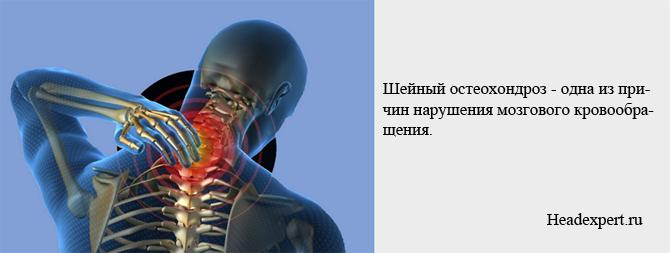 Шейный остеохондроз - одна из причин нарушения мозгового кровообращения