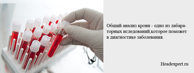 Общий анализ крови - одно из исследований для диагностики туберкулезного менингита