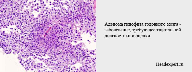 Заболевание аденома гипофиза требует тщательной диагностики