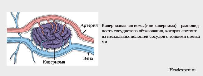 Кавернома головного мозга - опасное заболевание