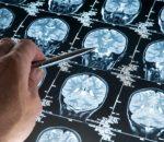 Кавернома головного мозга: причины, симптомы, лечение